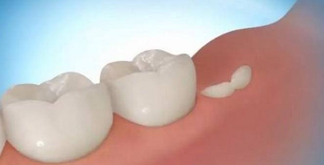 Բժիշկների հայտնաբերած  նոր դեղամիջոցը բնական կերպով կվերականգնի ատամները,մի շարք ստոմատոլոգներ անգործ են մնալու։