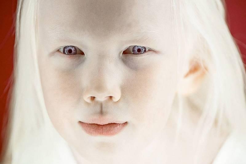 Գենետիկ անոմալիաներ, որոնք հիացնում են