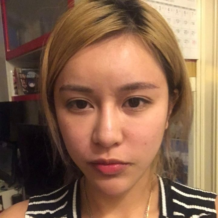 Չինացի աղջիկը 30 վիրահատություն է արել հանուն իր ընկերոջը, որը նրան նվաստացրել էր