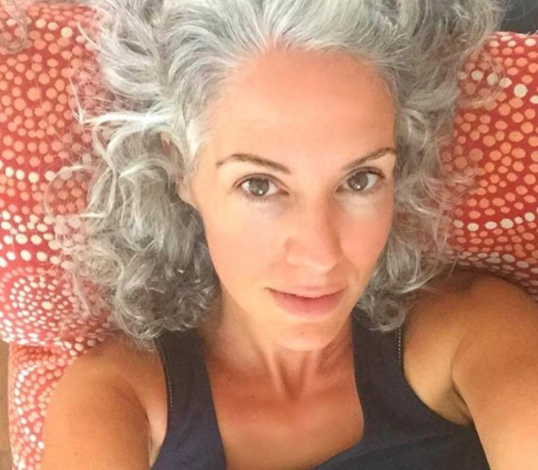 21-ամյա աղջիկը, ով մի օր արթնացել է սպիտակ մազերով, լուսանկար է հրապարակել