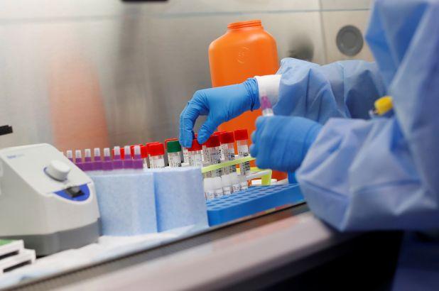 Այսօր ունենք կորոնավիրուսային հիվանդությամբ հաստատված 166 նոր դեպք և 452 առողջացած