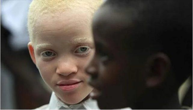 Սևամորթ  զույգը ուներ «սպիտակ» դուստր. Ի՞նչպիսի տեսք ունի  նա 10 տարի անց